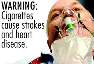 smoking causes..